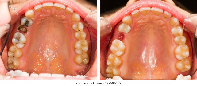 Sick denture before and after dental treatment.