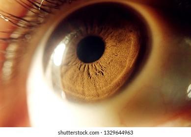 Kick-Auge Hintergrund / Rote Augen ist ein Zustand, bei dem das Weiße des Auges die Sklera gerötet oder blutrünstig geworden ist.