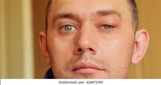 sick men's eyes, an abscess, chiry, boil.