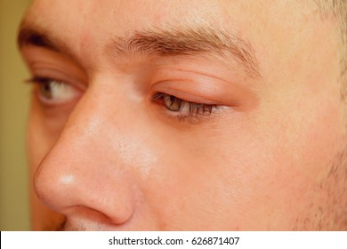 sick men's eyes, an abscess, chiry, boil