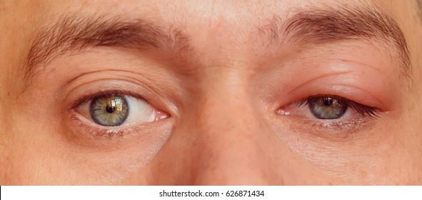 sick men's eyes, an abscess, chiry, boil
