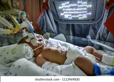 Sick newborn baby on breathing machine (mechanical ventilator) with orogastric tube in neonatal intensive care unit.
