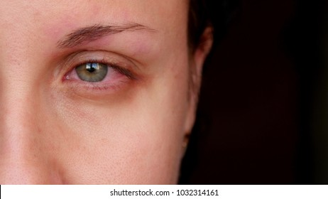 Sick red human eye of a young woman. A girl takes off her glasses, showing a red eye. Tired eyes from the computer