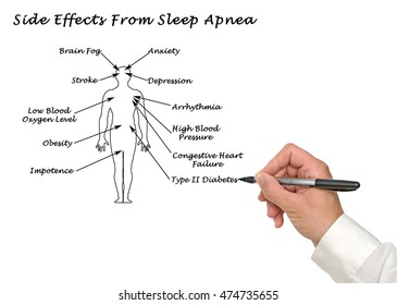 Side Effects Sleep Apnea Stock Photo Edit Now 474735655