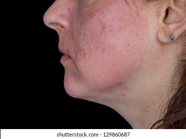 Side view of caucasian woman face after chemical peeling
