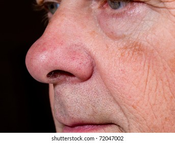 Side view of mature man's nose and upper lip with the eyes just visible