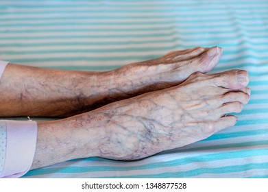 Side view of old human feet with purple veins.