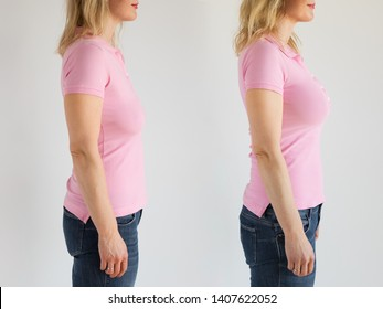 Side view of woman before and after breast lift enhancement and augmentation with implants surgery