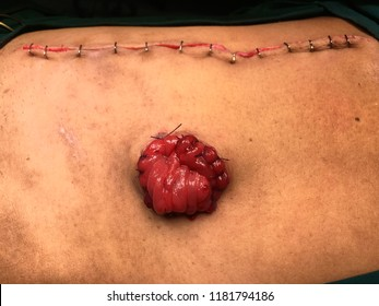 sigmoid loop colostomy was done after operation of obstruction of rectal cancer .