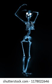 Silly dancing skeletons as seen through an xray machine