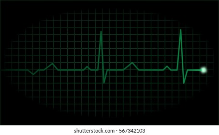 Simple green electrocardiograph display