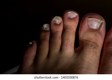 Cracked Nail Images, Stock Photos & Vectors | Shutterstock