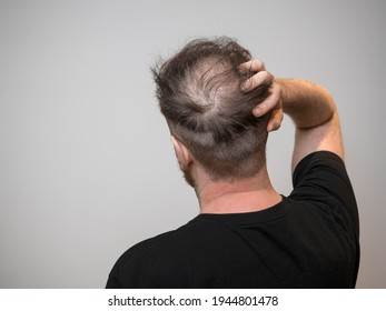 A single young caucasian male checking his bald patch on the back of his head, which shows clear signs of balding and hair loss. Shot against a white background with isolated man and room for text.