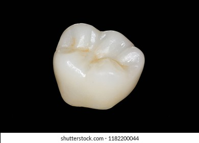 Single zirconian crown with porcelain