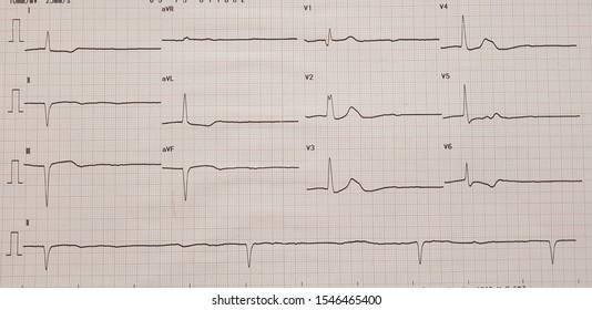 Sinus arrest with ventricular escape rhythm.