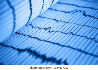 Sinus Heart Rhythm On Electrocardiogram Record Paper Showing Normal P Wave, PR and QT Interval and QRS Complex, EKG paper
