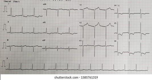 Sinus rhythm with left ventricular hypertrophy. LVH.