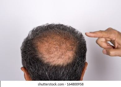 six months after hair transplant surgery