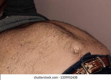 A sixty year old man with an abdominal wall hernia. Organs or tissues that are normally held in place by the abdominal wall bulge out through the weak spot.