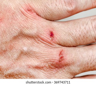 skin abrasion injury on the dorsum of the left hand