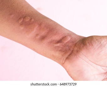 Skin Allergy Symptoms of patient