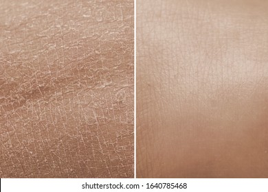 Skin before and after a treatment with moisturizing cream. Concept of anti-aging products