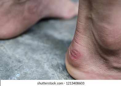 skin blister from shoe pinches,When wearing shoes that are too tight.