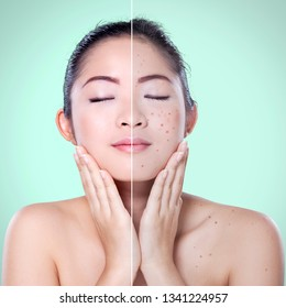 Skin care concept. Beautiful woman before and after acne treatment