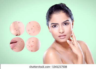 Skin care concept. Skin of beautiful young woman before and after treatment cosmetic