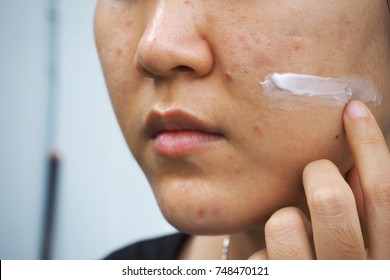 Skin care concept, Cream applying to problematic female skin with acne scars, closeup.