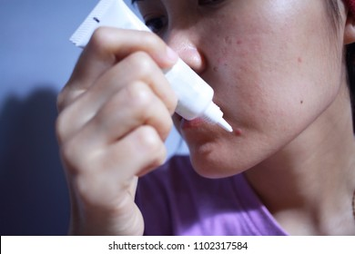 Skin care concept, Girl applying acne cream on her problematic skin, closeup.