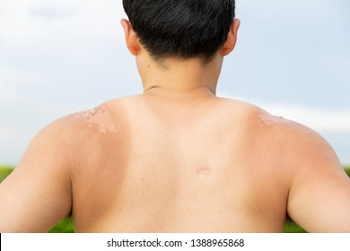 Skin care concept. Handsome guy got sunburn and got tan lines. The skin sloughs off its dead skin. It is the cause of melanoma if the man works at outdoor overtime because of strong sunlight