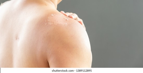 Skin care concept. Handsome guy got sunburn and got tan lines on his shoulder. The skin sloughs off its his burn skin. It is the cause of melanoma. He has a burning pain on his shoulder. He get suffer