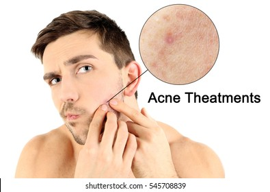 Skin care concept. Young man squeezing pimple, white background