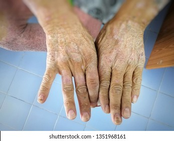 Skin disorder, pepper appearance from scleroderma, autoimmune disease male hand Skin disorder pepper appearance from vitiligo,scleroderma  raynaud, medical concept autoimmune disease. Skin disorder,