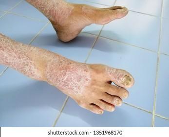 Skin disorder, pepper appearance from scleroderma, autoimmune disease male hand Skin disorder pepper appearance from vitiligo,scleroderma  raynaud, medical concept autoimmune disease. Skin disorder,