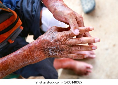Scleroderma Images, Stock Photos & Vectors | Shutterstock