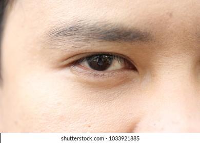 skin the eye macro