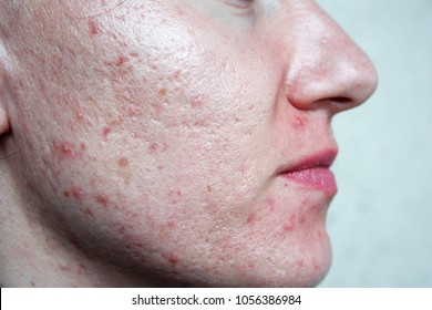 skin face. little girl large pores. white light skin. large and deep pimples on the skin. redness