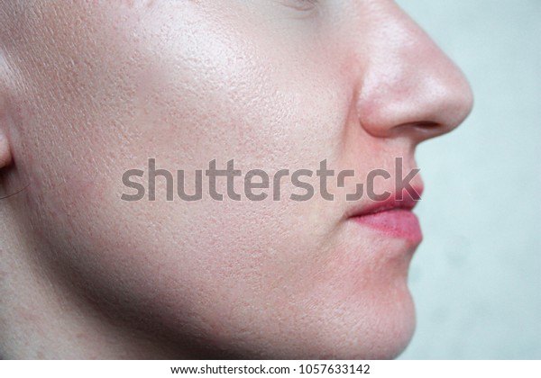 skin face. little girl large pores. white light skin and small irregularities on the skin