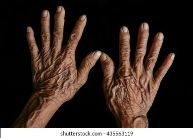 The skin of hands Asian Grandmothers wrinkles