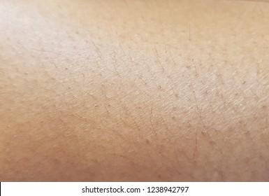 Ingrown Leg Hair Images, Stock Photos & Vectors | Shutterstock