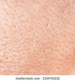 Skin man texture, large pores close-up