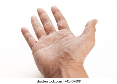 Skin on palm hand and finger dry and peel isolated white  background