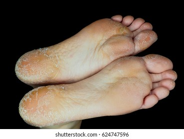 Skin peeling off from both feet side by side, on adult person