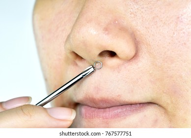 Skin problem with acne diseases, Close up woman face squeezing whitehead pimples on nose with acne removal tool, Scar and oily greasy face, Beauty concept.