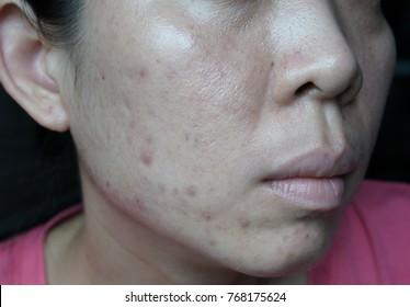 Women's Skin Problems