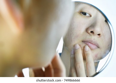 Skin problems and acne scar, Woman looking at mirror worried about her facial problem, Mirror reflection, Beauty concept.