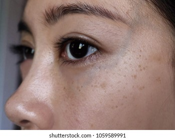 Skin problems of an Asian woman. Seborrheic kerotosis early stage, dark circle and obvious vein under eyes.