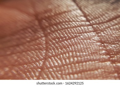 skin psoriasis. Skin diseases concept. macro skin of human hand.Medicine and dermatology concept. Details of human skin background